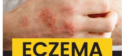 Eczema-ArticleMeme1