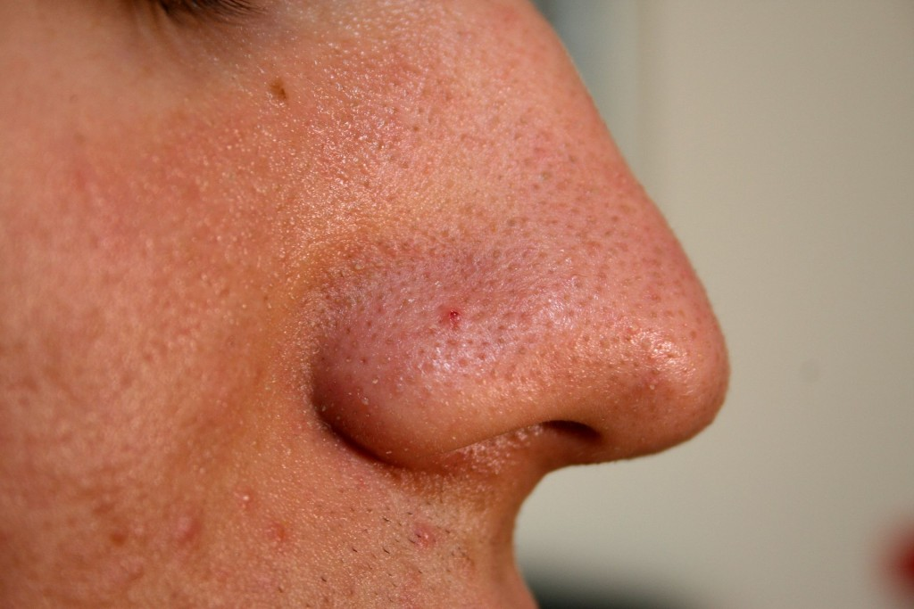Nose_with_Blackhead_2009