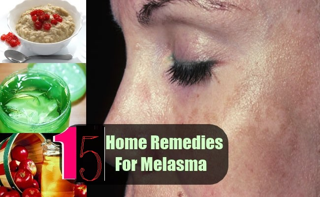 11-Best-Home-Remedies-For-Melasma1